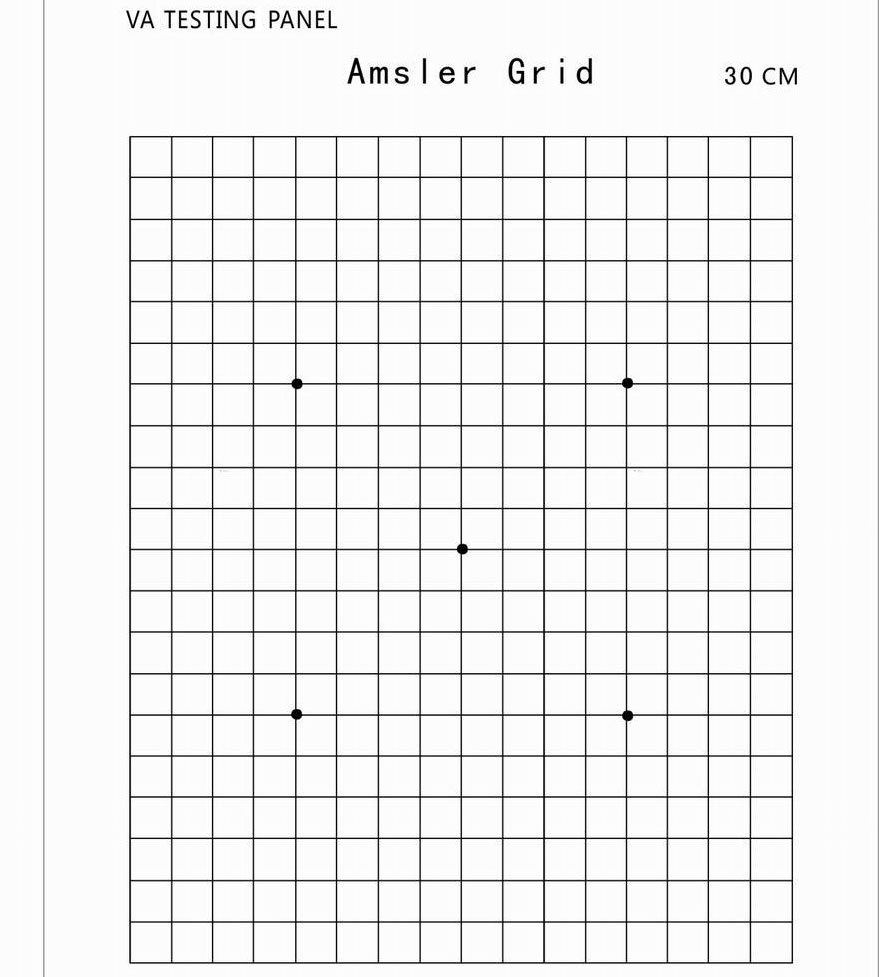 Amsler eye chart images free any chart examples amsler grid eye test chart gallery free any chart examples amsler grid eye chart choice image nvjuhfo Images